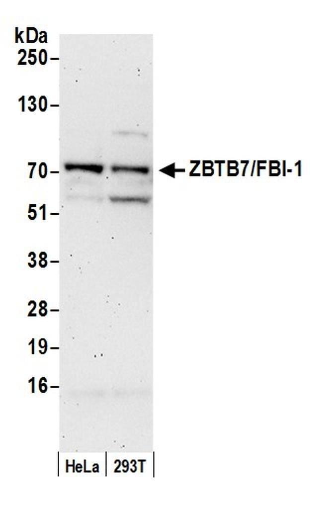 ZBTB7/FBI-1, Polyclonal, Bethyl Laboratories  20 µL; Unconjugated