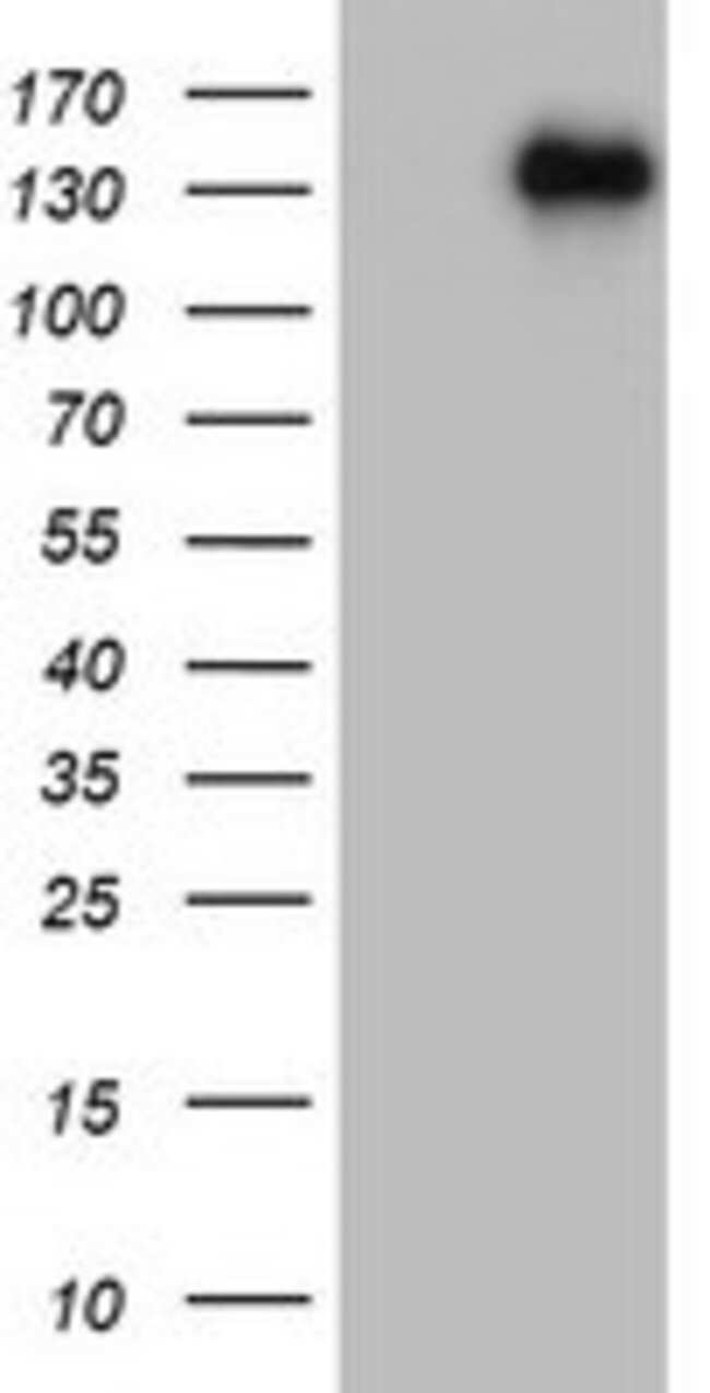 ZEB1 Mouse anti-Human, Clone: OTI8A2, lyophilized, TrueMAB  100 µg;