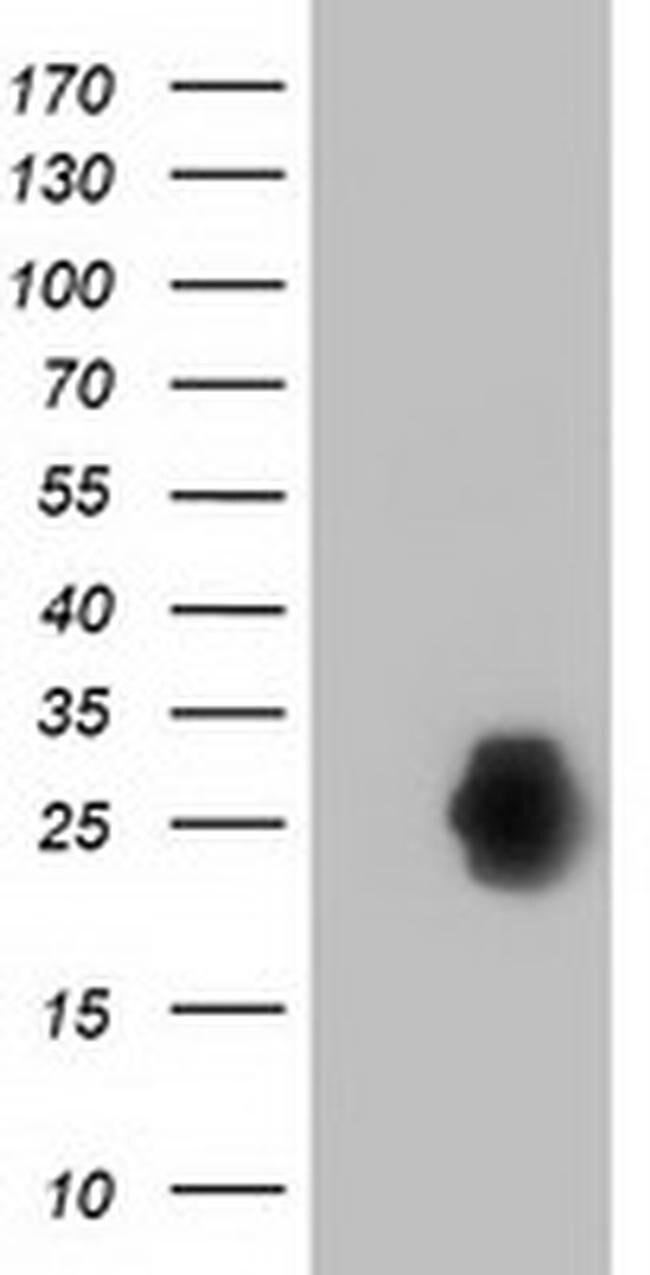 ZFAND2B Mouse anti-Human, Clone: OTI1G9, liquid, TrueMAB  100 µL;