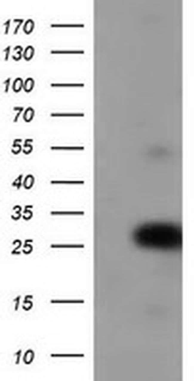 ZFAND2B Mouse anti-Human, Clone: OTI2E4, liquid, TrueMAB  100 µL;