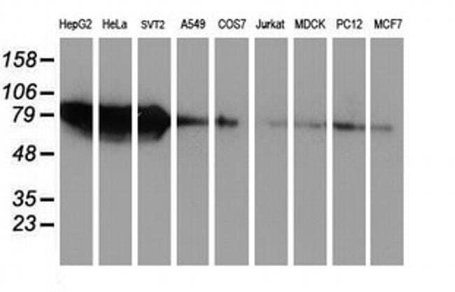ZFP36 Mouse anti-Human, Clone: OTI4B10, liquid, TrueMAB  100 µL; Unconjugated