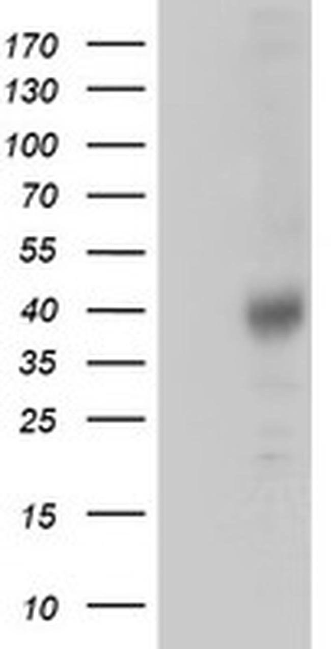 ZFP36 Mouse anti-Human, Clone: OTI1A2, liquid, TrueMAB  100 µL; Unconjugated