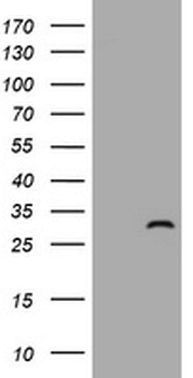 ZFYVE21 Mouse anti-Human, Clone: OTI2B12, liquid, TrueMAB  100 µL;