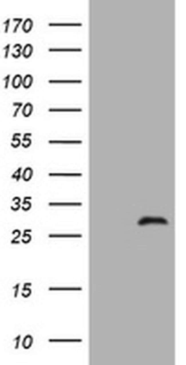 ZFYVE21 Mouse anti-Human, Clone: OTI4A2, liquid, TrueMAB  100 µL;