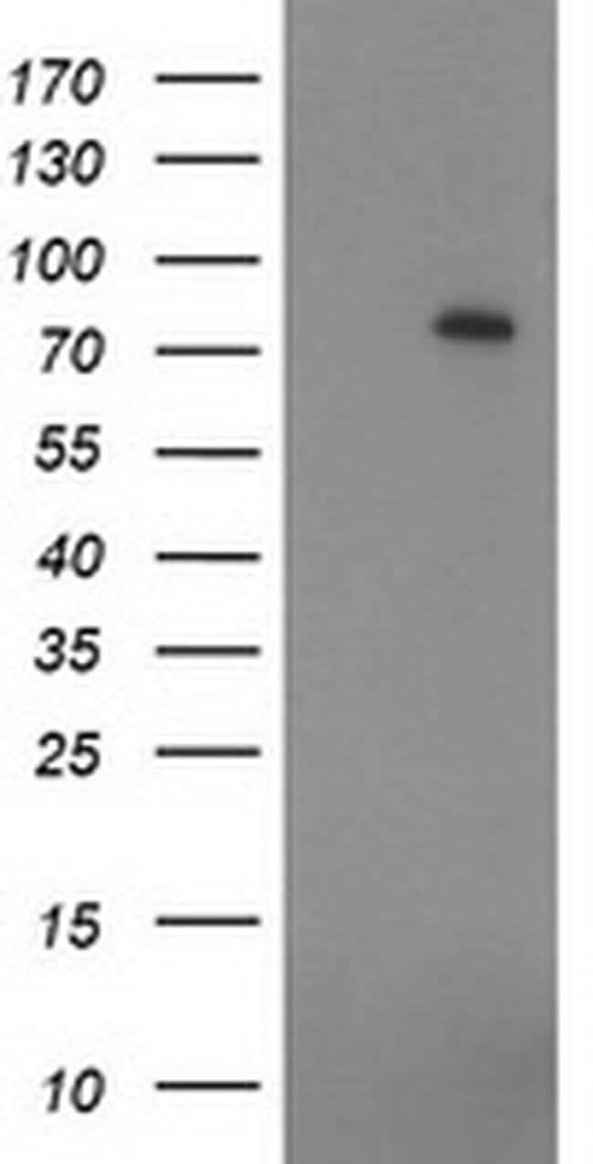 ZIM2 Mouse anti-Human, Clone: OTI5C7, liquid, TrueMAB  100 µL; Unconjugated