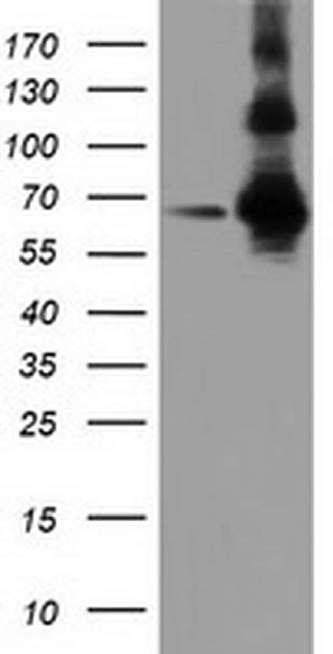 ZIM2 Mouse anti-Human, Clone: OTI5E12, liquid, TrueMAB  100 µL; Unconjugated