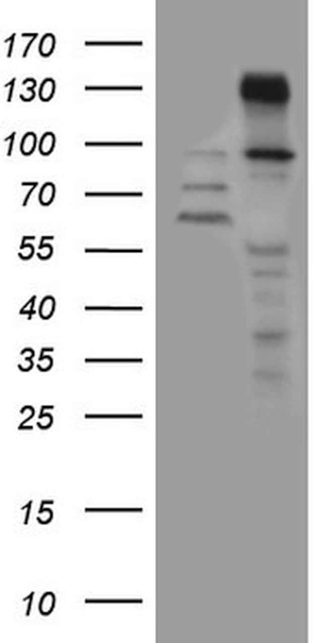 ZNF217 Mouse anti-Human, Clone: OTI2B4, lyophilized, TrueMAB  100 µg;