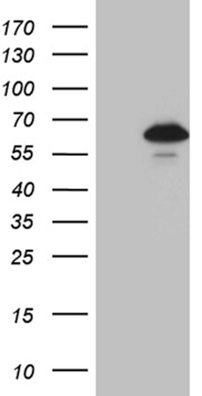 ZNF329 Mouse anti-Human, Clone: OTI2D12, lyophilized, TrueMAB  100 µg;
