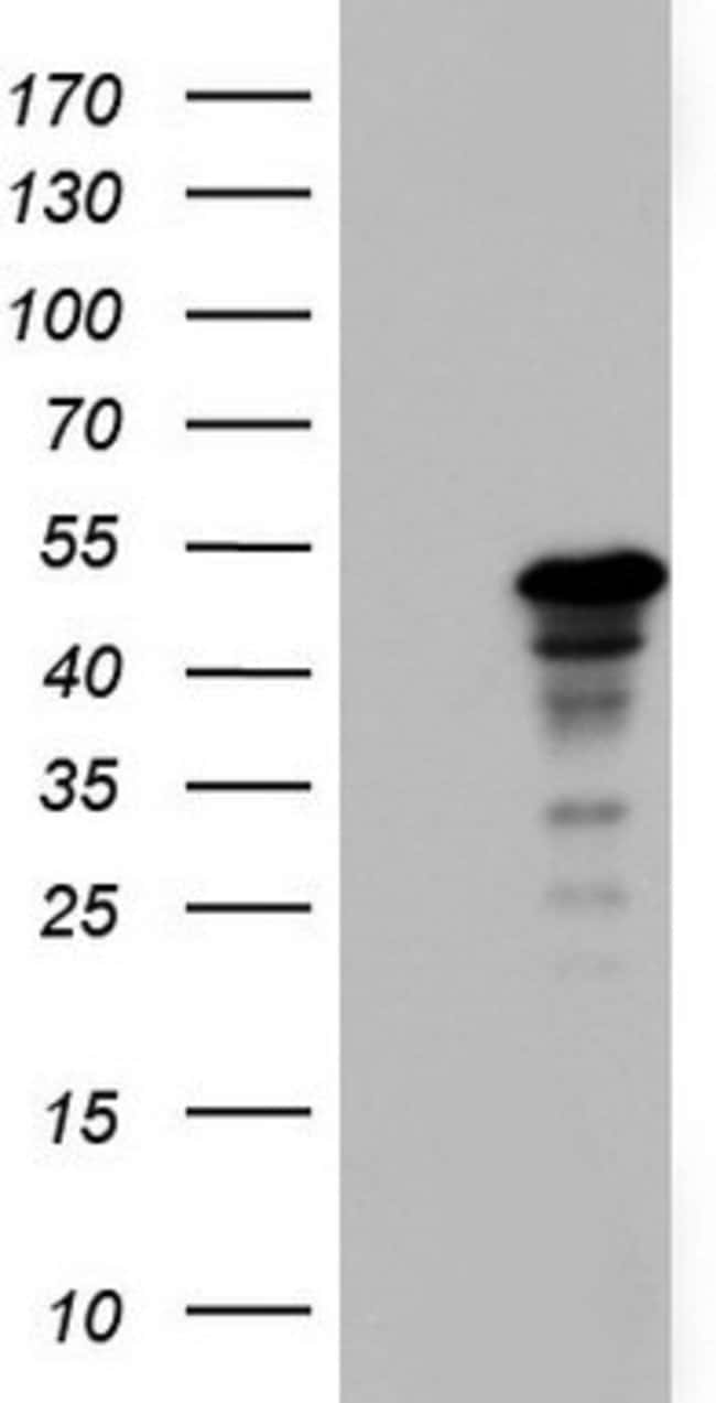 ZNF500 Mouse anti-Human, Clone: OTI1E2, lyophilized, TrueMAB  100 µg;