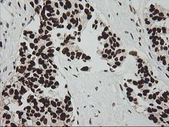 ZSCAN18 Mouse anti-Human, Clone: OTI2H7, liquid, TrueMAB  100 µL;