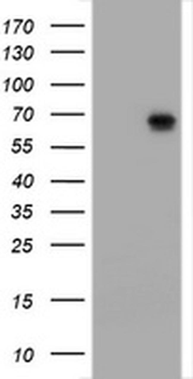 ZSCAN18 Mouse anti-Human, Clone: OTI2A9, liquid, TrueMAB  100 µL;