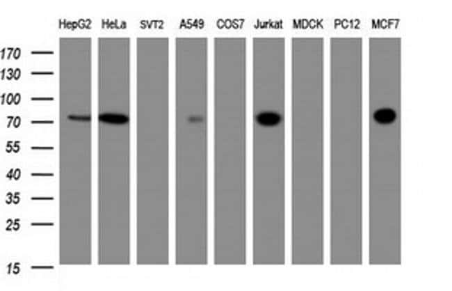 ZSCAN18 Mouse anti-Human, Clone: OTI4D10, liquid, TrueMAB  100 µL;