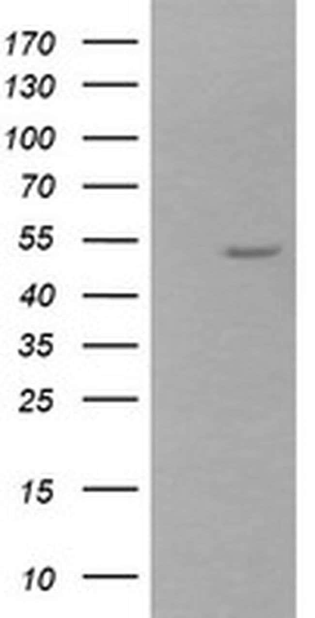 ZSCAN21 Mouse anti-Canine, Human, Mouse, Clone: OTI3B3, liquid, TrueMAB