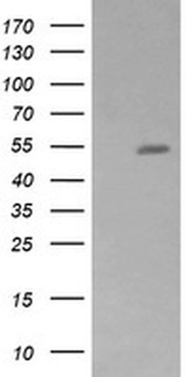 ZSCAN21 Mouse anti-Human, Clone: OTI2D8, liquid, TrueMAB  100 µL;
