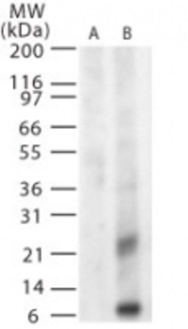 West Nile Virus Glycoprotein M Rabbit anti-Virus, Polyclonal, Invitrogen