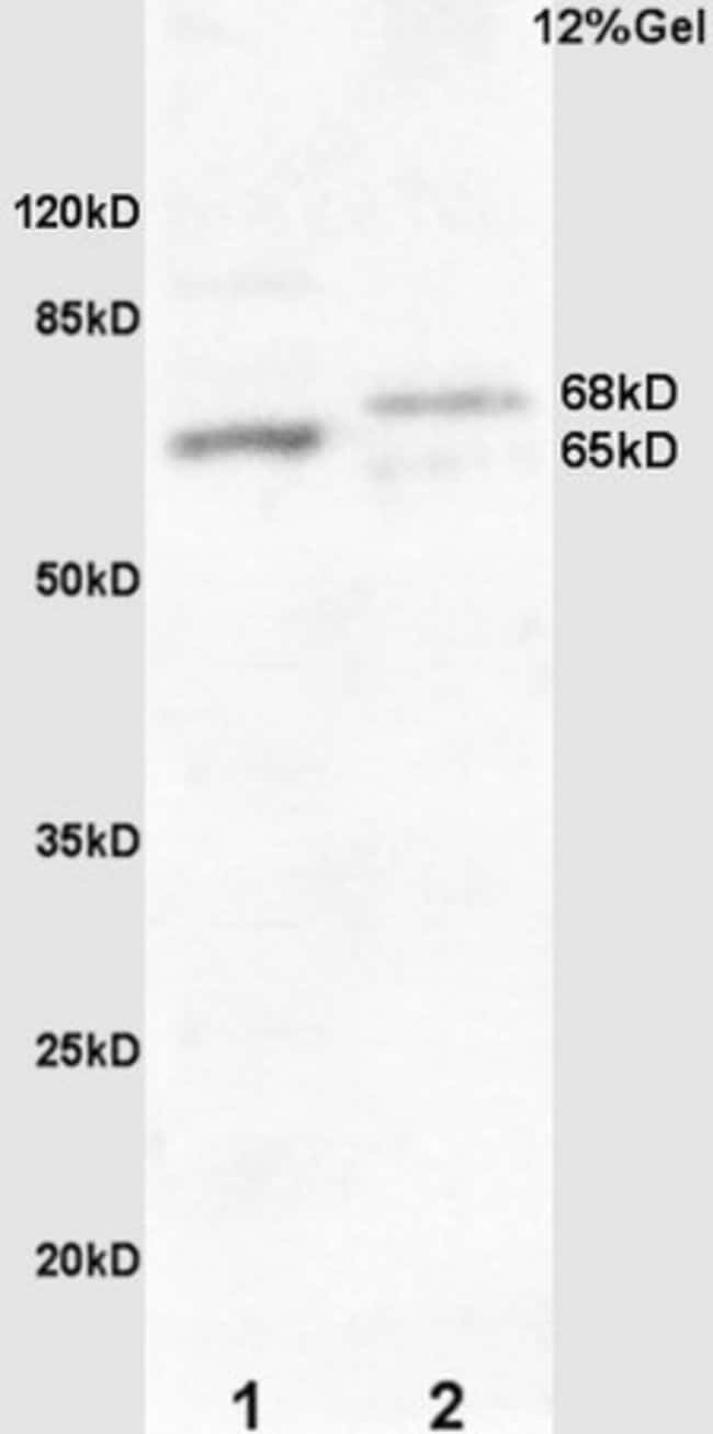 Frizzled 10/CD350 Rabbit anti-Human, Polyclonal, Bioss  100 µL; Unconjugated