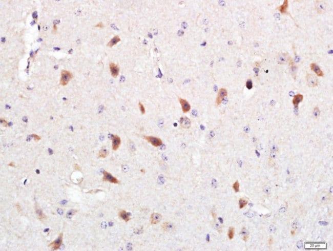 Optineurin Rabbit anti-Human, Polyclonal, Bioss  100 µL; Unconjugated