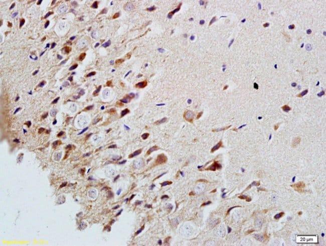 MAP2/MAP-2a.b.c Rabbit anti-Human, Polyclonal, Bioss  100 µL; Unconjugated