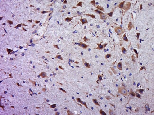 C20orf94 Rabbit anti-Human, Polyclonal, Bioss  100 µL; Unconjugated