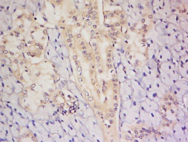 C8orf72 Rabbit anti-Human, Polyclonal, Bioss  100 µL; Unconjugated