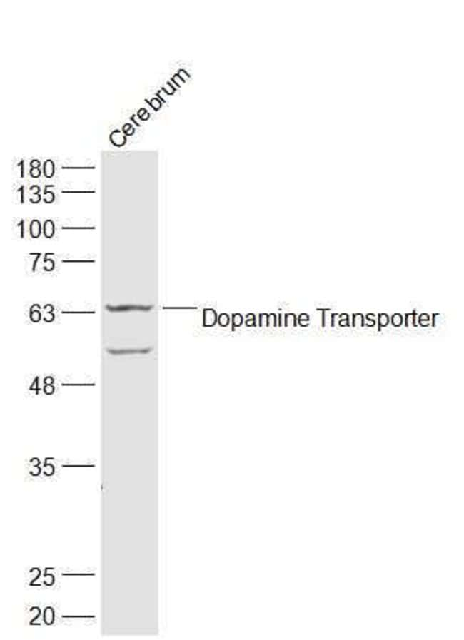 DAT/Dopamine transporter Rabbit anti-Human, Polyclonal, Bioss  100 µL;