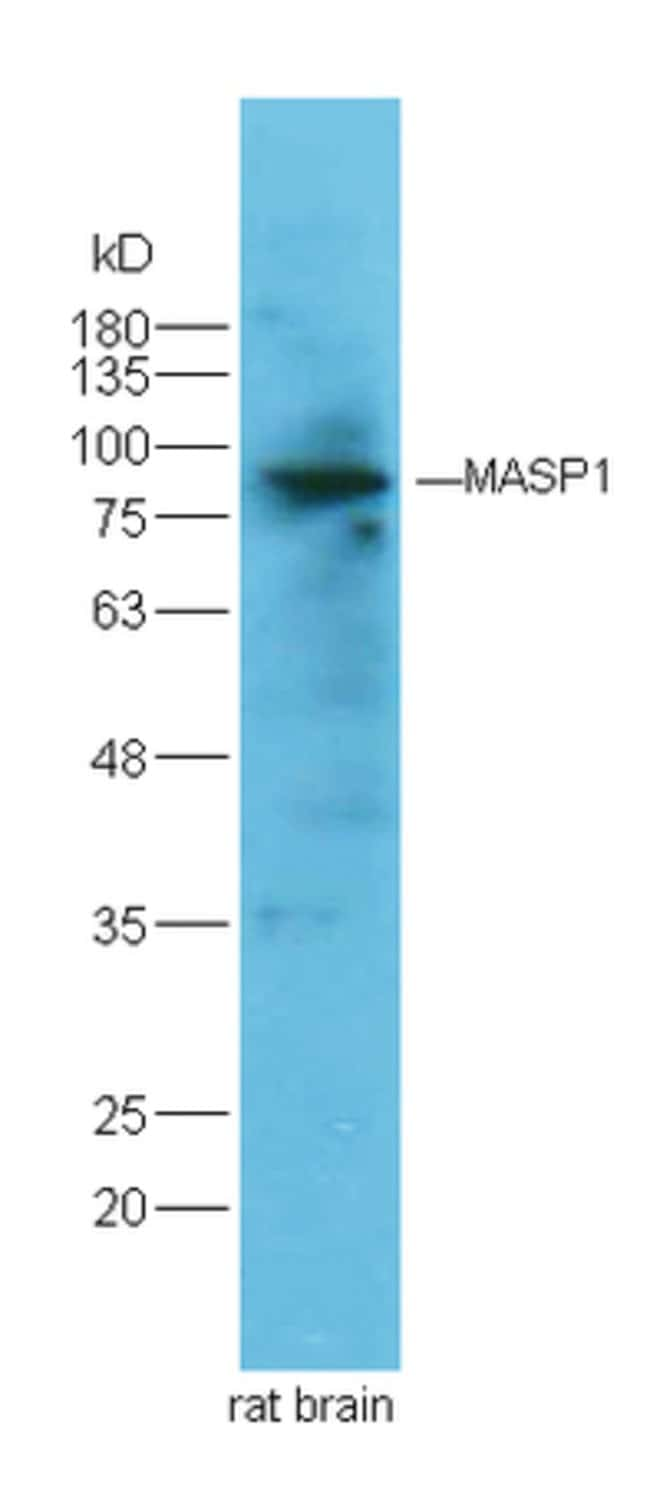 MASP Rabbit anti-Human, Polyclonal, Bioss  100 µL; Unconjugated