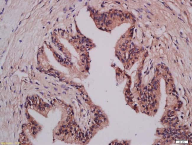 LMAN1 Rabbit anti-Human, Polyclonal, Bioss  100 µL; Unconjugated