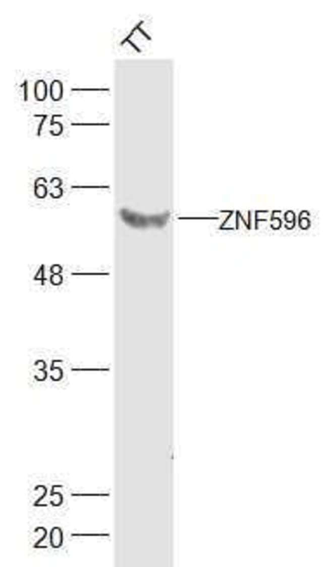 ZNF596 Rabbit anti-Human, Polyclonal, Bioss  100 µL; Unconjugated