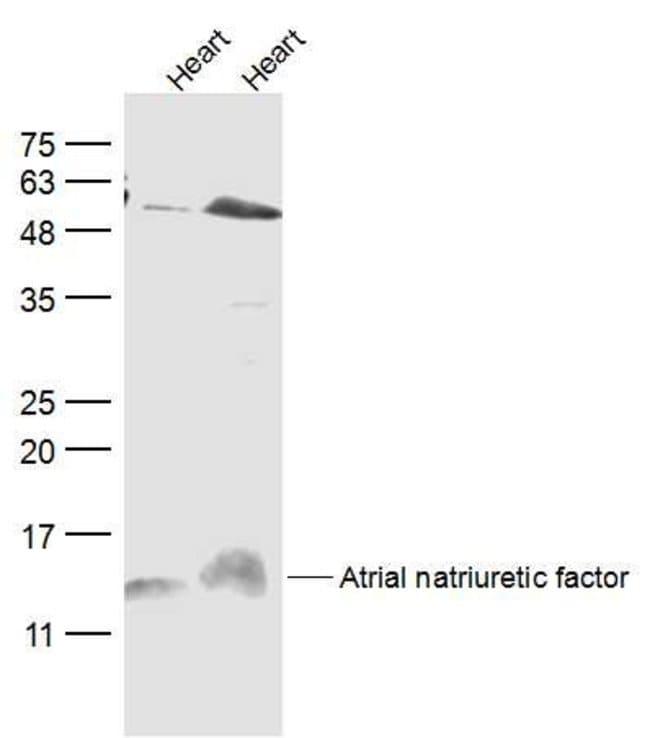 ANP Rabbit anti-Human, Polyclonal, Bioss  100 µL; Unconjugated