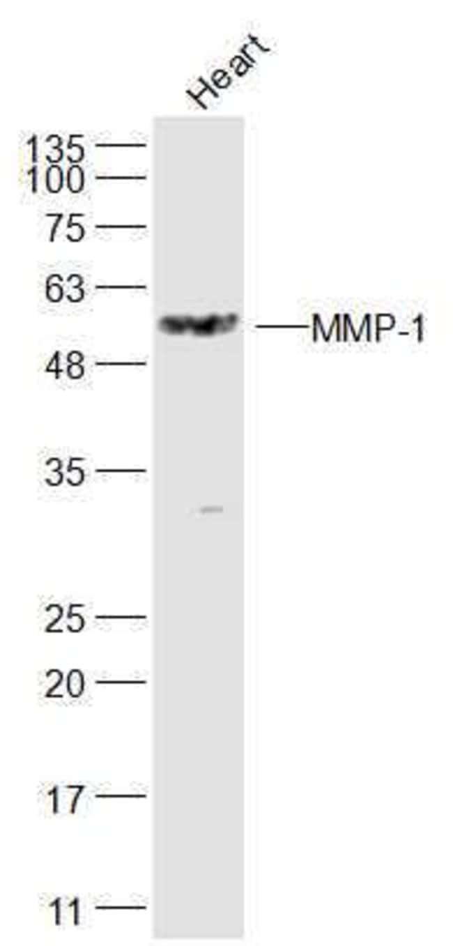 MMP-1 Rabbit anti-Human, Polyclonal, Bioss  100 µL; Unconjugated