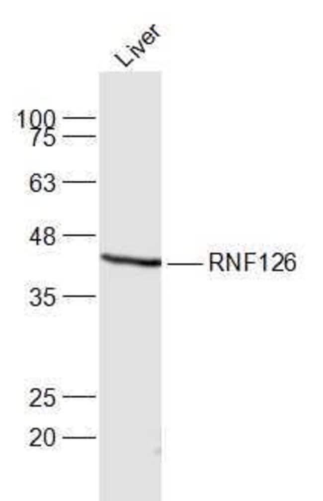 RNF126 Rabbit anti-Human, Polyclonal, Bioss  100 µL; Unconjugated