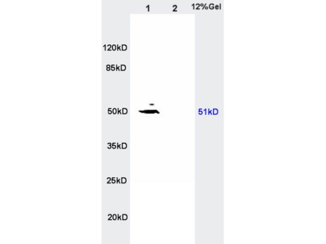 MCT4 Rabbit anti-Human, Polyclonal, Bioss  100 µL; Unconjugated