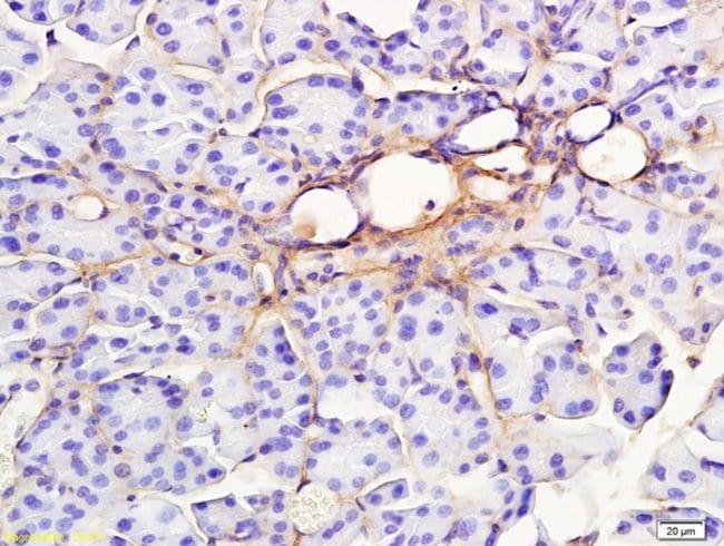 RAP1GAP Rabbit anti-Human, Polyclonal, Bioss  100 µL; Unconjugated