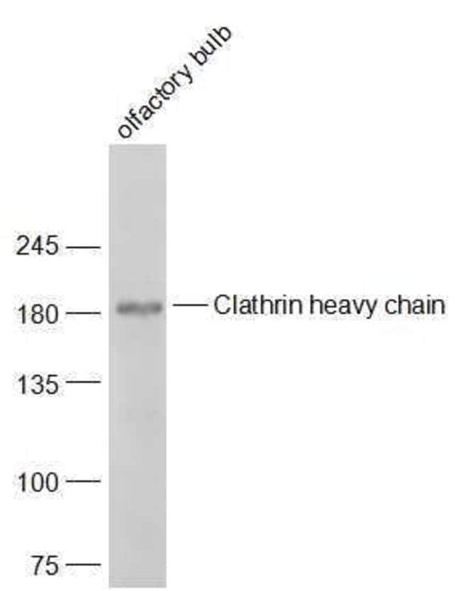 Clathrin heavy chain Rabbit anti-Human, Polyclonal, Bioss  100 µL;