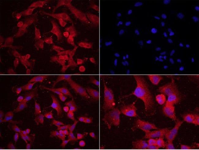 Phospho-MAP2 (Ser136) Rabbit anti-Human, Polyclonal, Bioss  100 µL;