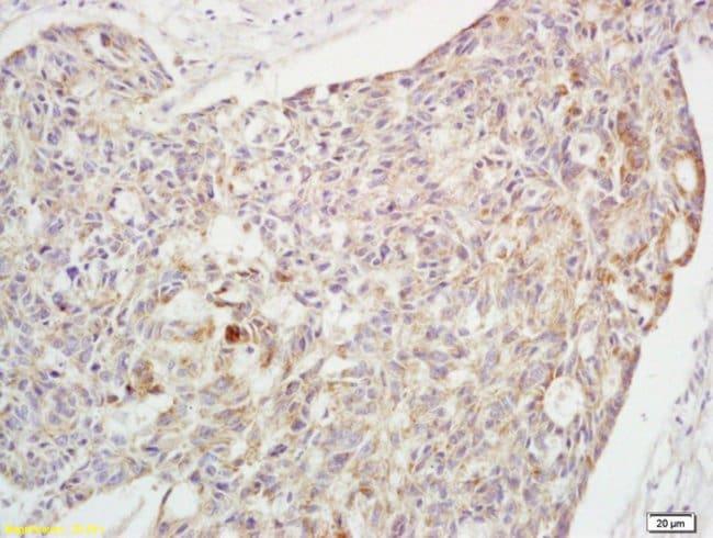 Phospho-Crkl (Tyr251) Rabbit anti-Human, Polyclonal, Bioss  100 µL;