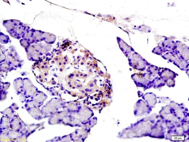 NOX2/gp91phox Rabbit anti-Human, Polyclonal, Bioss  100 µL; Unconjugated