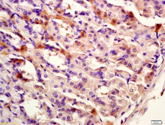 CK12 Rabbit anti-Human, Polyclonal, Bioss  100 µL; Unconjugated