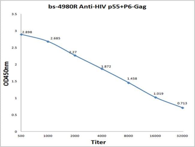 HIV Gag Polyprotein Rabbit anti-Human, Polyclonal, Bioss  100 µL;