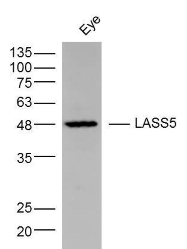 LASS5 Rabbit anti-Human, Polyclonal, Bioss  100 µL; Unconjugated