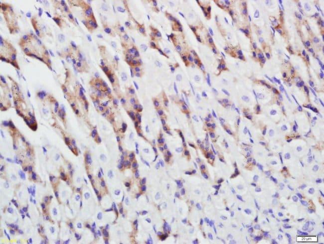 Cytokeratin 5 Rabbit anti-Human, Polyclonal, Bioss  100 µL; Unconjugated