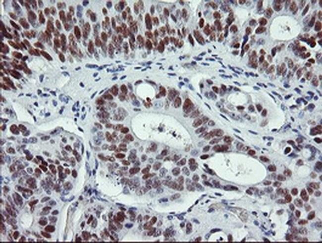 p53 Mouse anti-Human, Clone: OTI1E1, liquid, TrueMAB  100 µL; Unconjugated