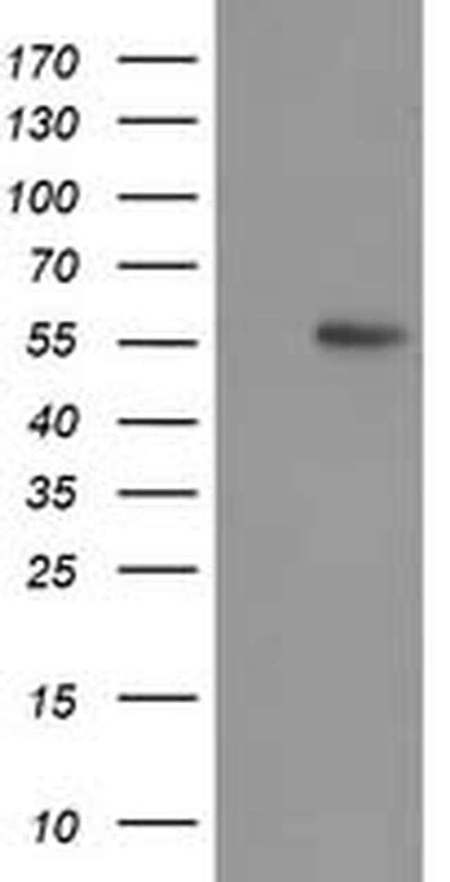 p53 Mouse anti-Human, Mouse, Clone: OTI2E4, liquid, TrueMAB  100 µL;