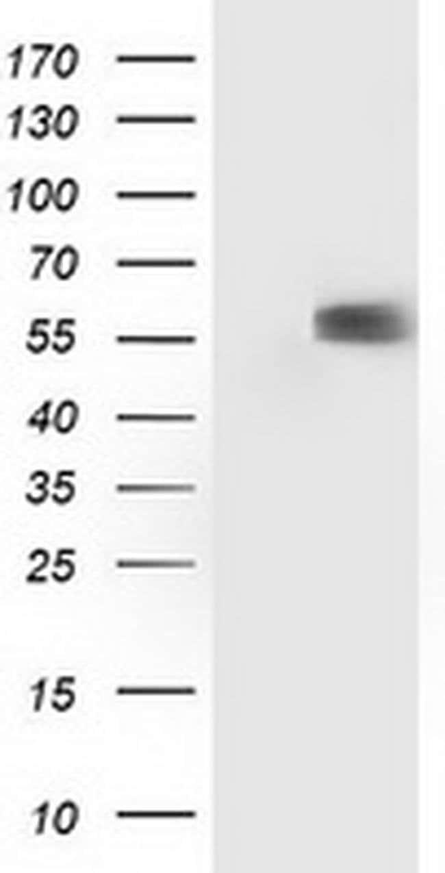 p53 Mouse anti-Human, Clone: OTI1F4, liquid, TrueMAB  100 µL; Unconjugated