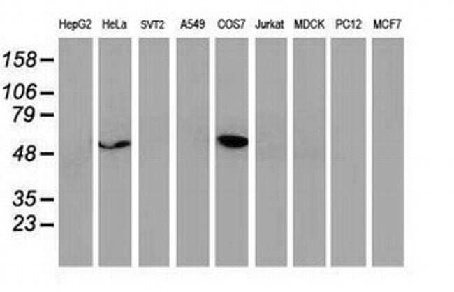 p53 Mouse anti-Human, Clone: OTI1D8, liquid, TrueMAB  100 µL; Unconjugated