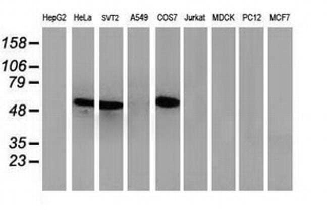 p53 Mouse anti-Human, Mouse, Clone: OTI5E2, liquid, TrueMAB  100 µL;