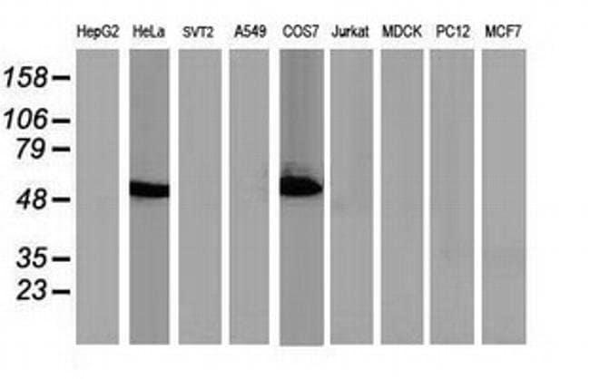 p53 Mouse anti-Human, Clone: OTI2H4, liquid, TrueMAB  100 µL; Unconjugated