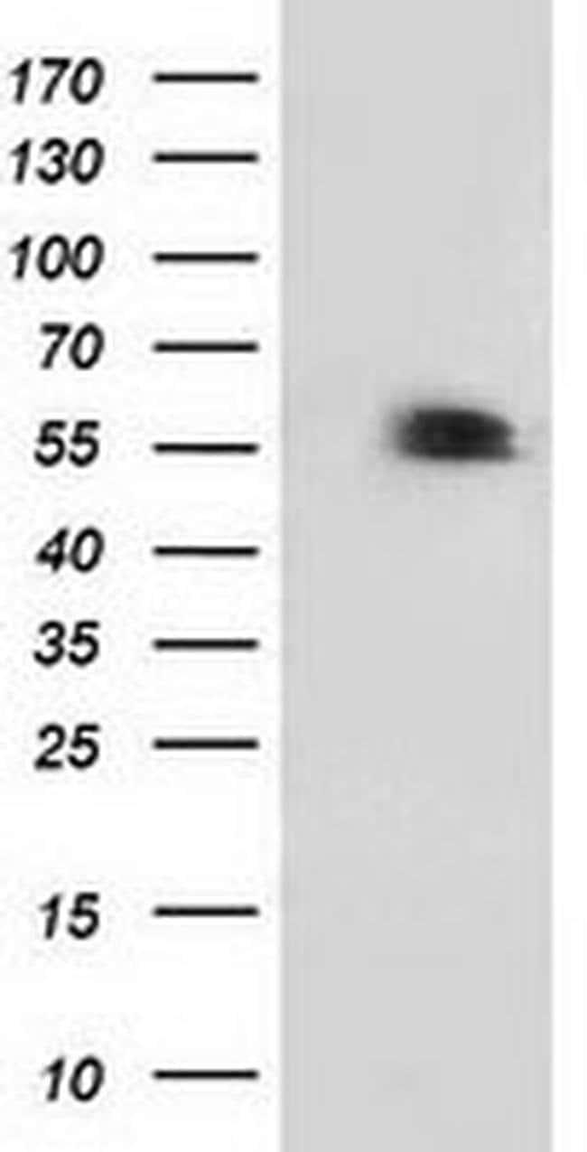p53 Mouse anti-Human, Clone: OTI2A4, liquid, TrueMAB  100 µL; Unconjugated