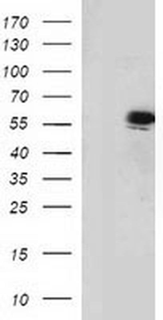 p53 Mouse anti-Human, Mouse, Clone: OTI1D1, liquid, TrueMAB  100 µL;