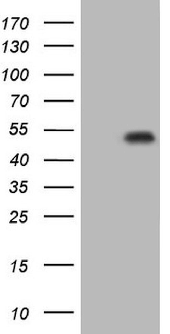 p53 Mouse anti-Human, Clone: OTI6C1, lyophilized, TrueMAB  100 µg;